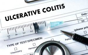 diagnostico de la colitis ulcerosa