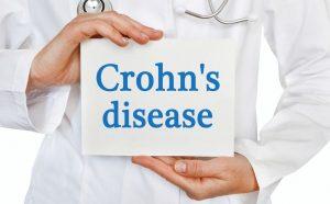 cómo prevenir la enfermedad de crohn