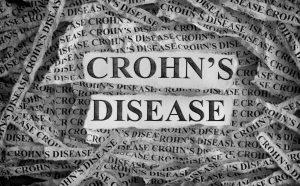 como tratar la enfermedad de crohn de manera natural
