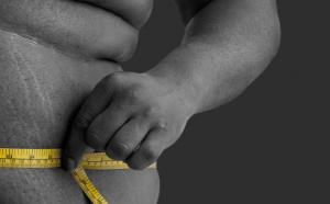 Obesidad o sobrepeso